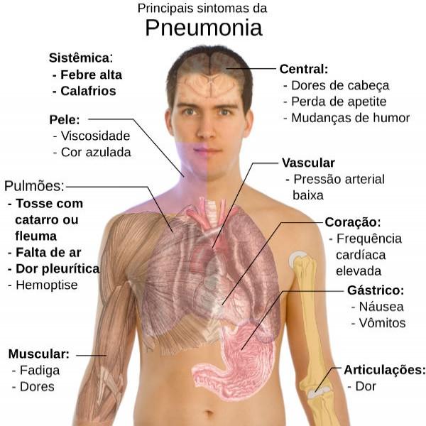 Resultado de imagem para o poder de cura do mastruz COMBATENDO A PNEUMONIA