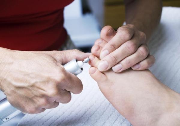 Uma visita ao podólogo uma vez por mês é fundamental para ter pés saudáveis e belos (Foto: Divulgação MdeMulher)