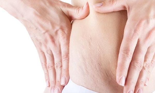 Estrias podem ser tratadas com carboxiterapia (Foto:MdeMulher)