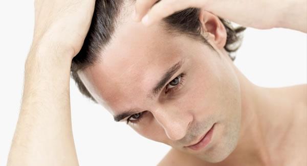 Queda de Cabelo - Causas e Tratamento 3