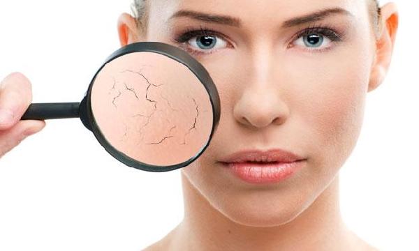 O ressecamento da pele pode ser amenizado com tratamentos (Foto: Divulgação MdeMulher)