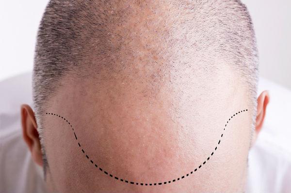 Implante Capilar 2