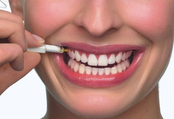 Pesquise um bom local para fazer um implante dentário (Foto: Divulgação)