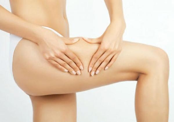 Tratamento Estético Contra Celulite - Lipoaspiração a Laser (Foto: MdeMulher)
