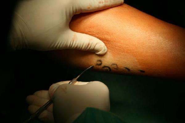 Clínica Para Tratamento de Estrias (Foto: MdeMulher)