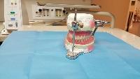 Prótese Dentária - Preços Fixas Flexível Silicone Porcelana 2
