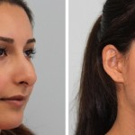 Cirurgia Rinoplastia Preço, Valor da Cirurgia Plástica no Nariz 12 (4)