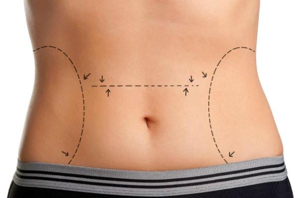 Cirurgia de Abdominoplastia - Preços Antes e Depois