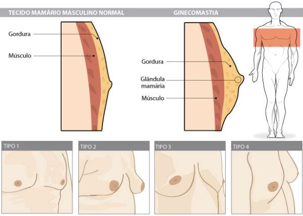 Redução de Mama Masculina - Preços Cirurgia 1