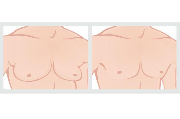 Redução de Mama Masculina - Preços, Cirurgia
