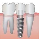 Tratamento Dentário Gratuito Pernambuco