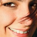 Aparelho Odontológico, Preços Valores e Clínicas