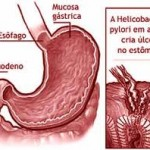 Tratamento Natural para Gastrite