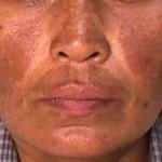 Como Cuidar das Manchas de Pele