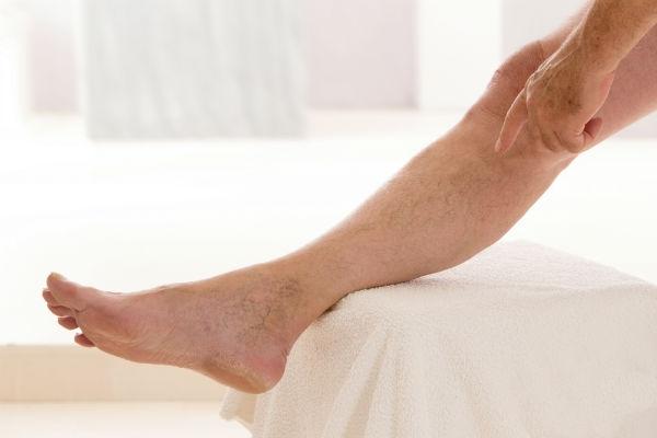 Conheça alguns tratamentos para tirar manchas da perna