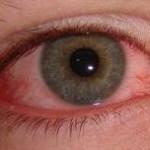 Tratamento para Olhos Secos