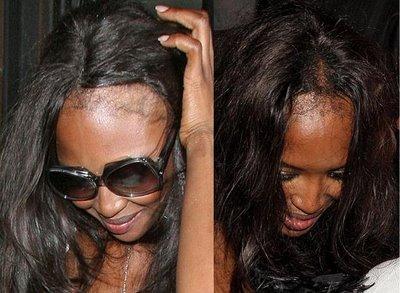 tratamento para queda de cabelo 3