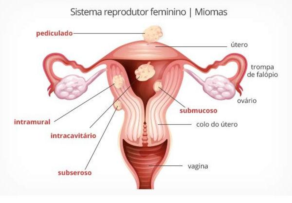 Mioma uterino causas sintomas tratamento 1