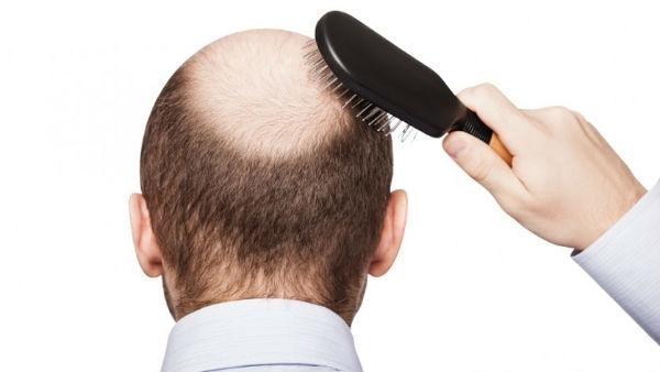 Queda de cabelo pode indicar problemas de saúde 3