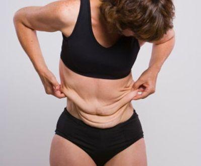 Para evitar a flacidez depois da dieta, faça muito exercício físico. (Foto: Divulgação)