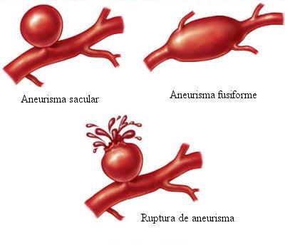 O aneurisma pode levar a sérias complicações