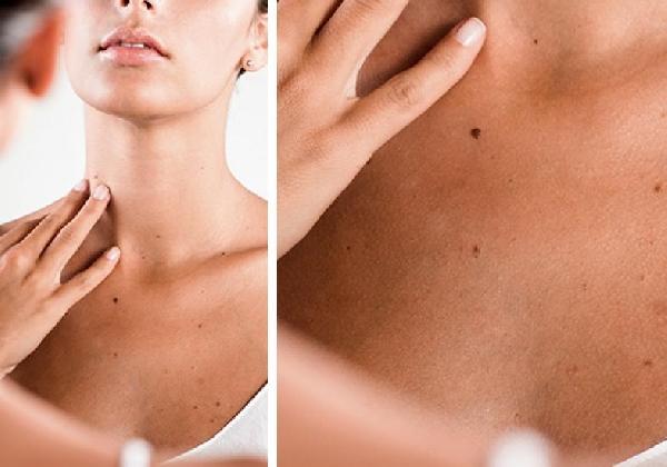 As verrugas podem aparecer em qualquer parte do corpo (Foto: Divulgação MdeMulher)