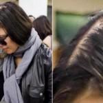Fergie  também está sofrendo com as quedas de cabelos(Foto:Divulgação)