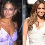 Jennifer Lopez também está na lista das siliconadas.