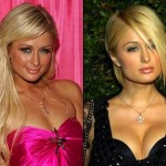 """Paris Hilton"" linda e sensual depois do implante de silicone."