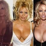 Quando o assunto é implante de silicone fica quase impossível não lembrar de Pamela Anderson.