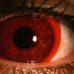Para um olhar em chamas as lentes vermelhas são perfeitas. (Foto: divulgação)