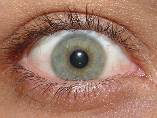 Pressão-ocular-alta-sintomas-4