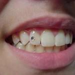 Piercing no dente. (Foto:Divulgação)