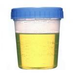 Urina verde: o que pode ser