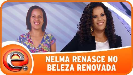 Beleza Renovada (Foto: Divulgação)