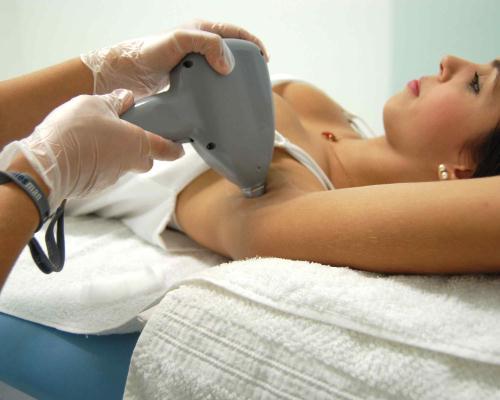 A depilação a laser pode eliminar os pelos, definitivamente (Foto: Divulgação)