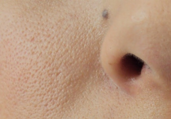 Com calor e transpiração, os poros ficam mais abertos (Foto: Divulgação)