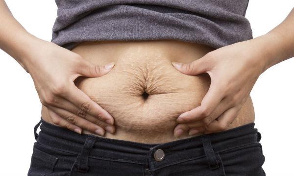 Cirurgia plástica para estrias (Foto: Divulgação)