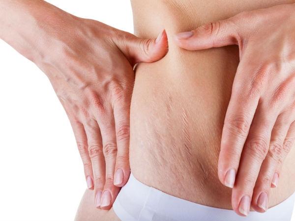 Dependendo da região em que a estria aparecer, é possível fazer cirurgia para removê-la (Foto: Divulgação)