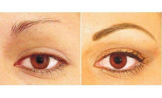 Se você deseja reconstruir sua sobrancelha, faça um implante e realize-se.(foto: divulgação)