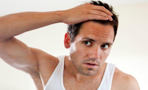 A queda de cabelo pode estar relacionada a vários fatores (Foto Ilustrativa)