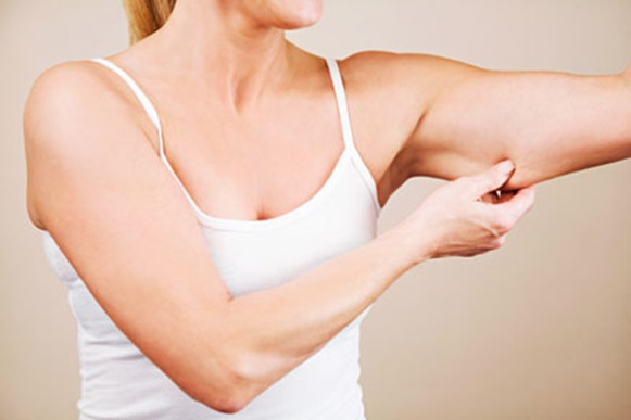 Como prevenir e amenizar pele flácida. (Foto Ilustrativa)