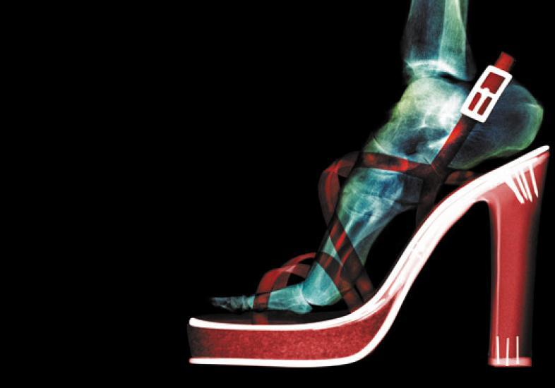 É preciso achar um salto ou sapato que seja mais confortável (Foto: M de Mulher/Abril)