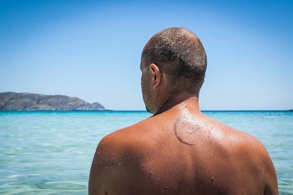A pele muito bronzeada também dificulta a ação do laser. (Foto Ilustrativa)