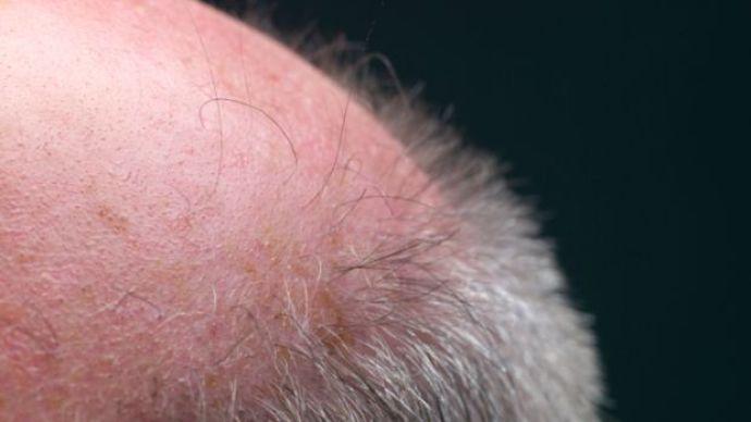 Procure uma boa clínica para tratar a queda de cabelo (Foto: Veja/Abril)