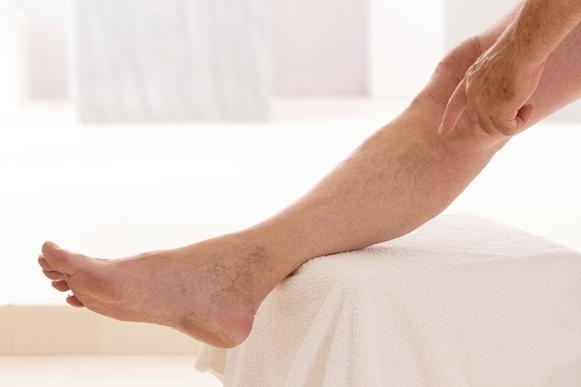 O inchaço é um dos principais sintomas da trombose. (Foto Ilustrativa)