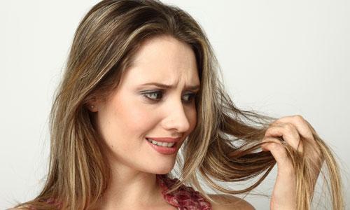 Queda de cabelo frequente necessita de um médico (Foto: M de Mulher/Abril)