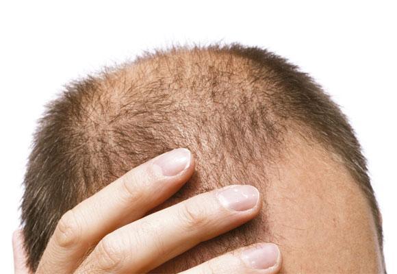 A queda de cabelo nos homens pode ser contida (Foto Divulgação: Viva Saúde)