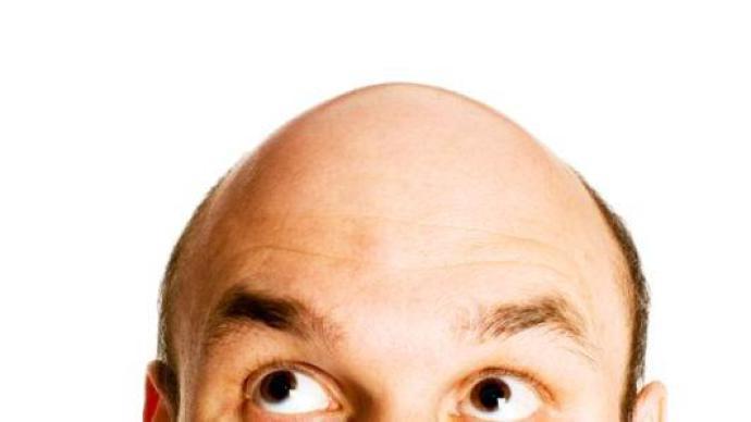 Como descobrir a causa da queda de cabelo (Foto: Abril)