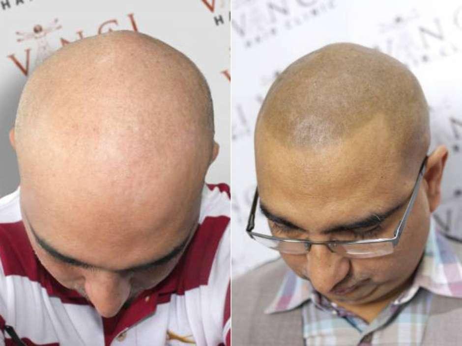 Mitos e verdades sobre o implante capilar (Foto: Vinci Hair Clinic / Divulgação)